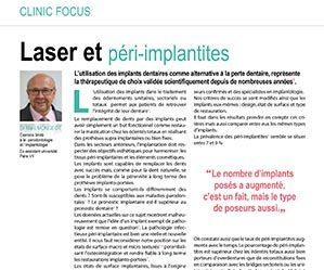 XXXX Laser et péri-implantites