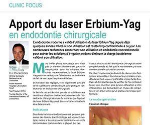 Apport du laser erbium-Yag en endodontie chirurgicale