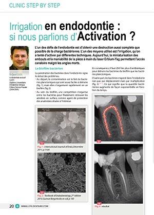 irrigation en endodontie : si nous parlions d'activation ?