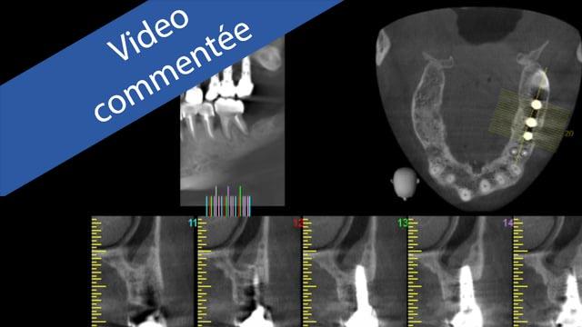 Péri-implantite : Traitement chirurgical assisté au LASER Er-Yag